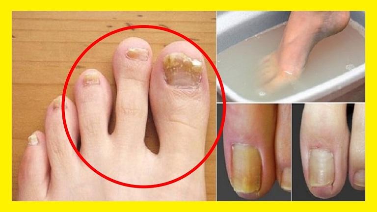 Adiós al mal olor: Elimina los hongos de tus uñas y pies con este ...